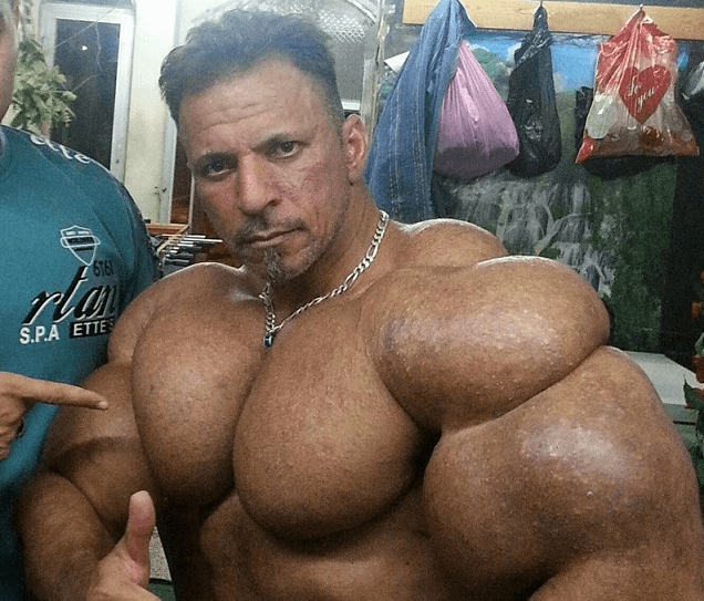 Photos: See The Biggest Synthol Heads On This Planet