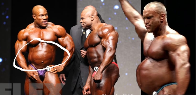 HGH Abuse In Bodybuilding - Distended Gut From Growth Hormone