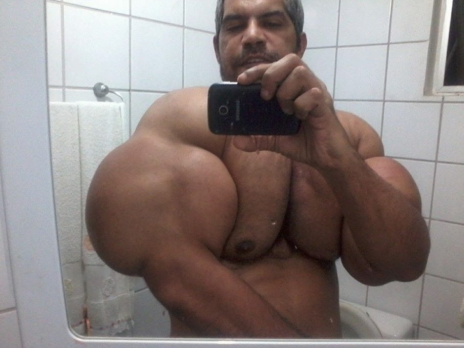 Biggest Arms In The World?