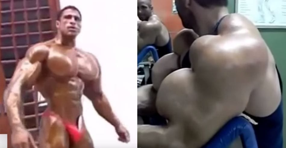 7 Craziest Synthol Fails the Bodybuilding World Has Ever