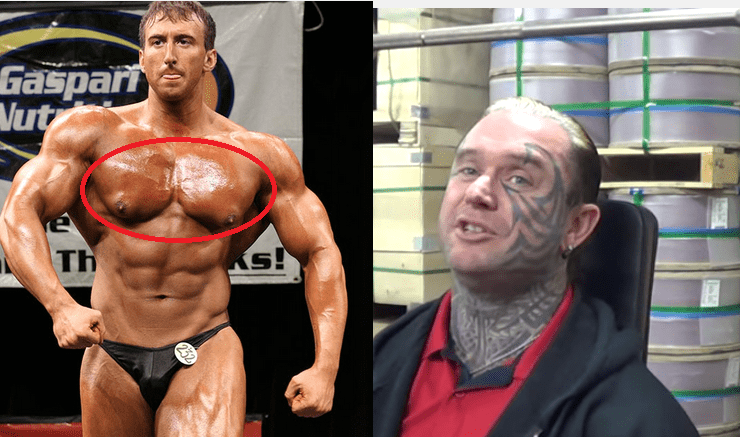 Lee Priest talks about GYNO in Bodybuilding