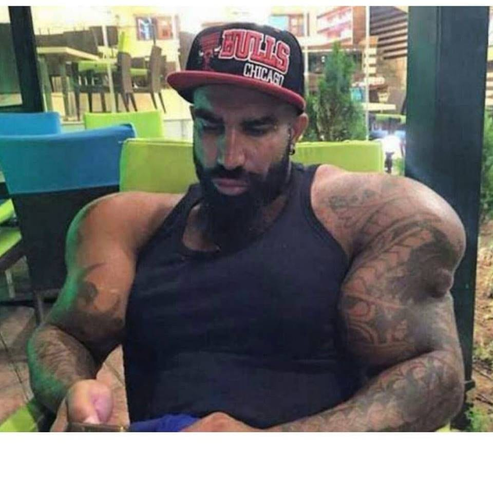 The Synthol Twin Of Lazar Angelov