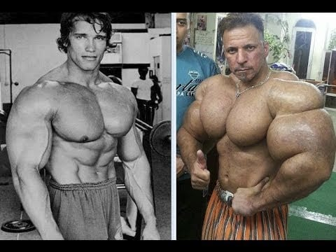 Steroids Vs Synthol - Which Is Safest?