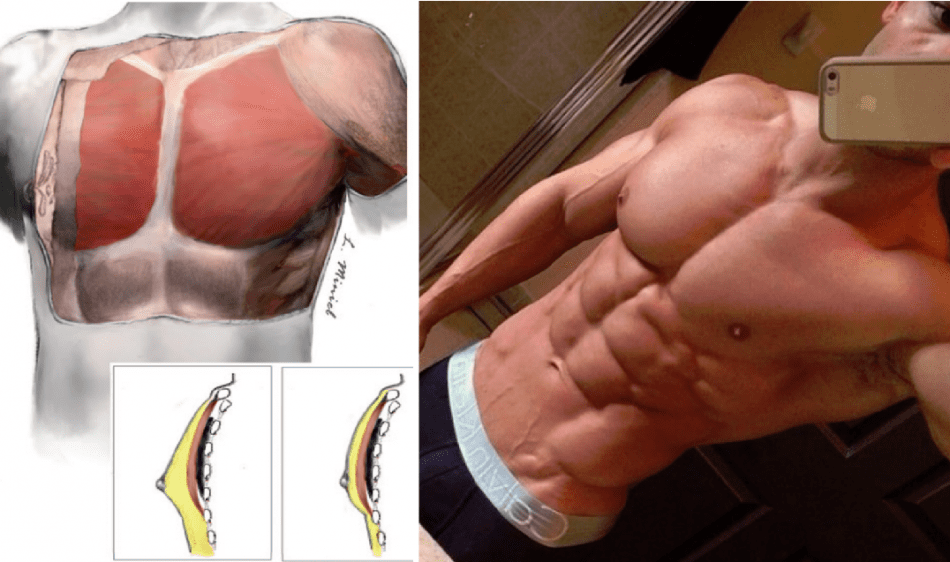 how to lose chest fat faster