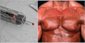 Sustanon Side Effects: Top 7 Worst Results From Sust Injections