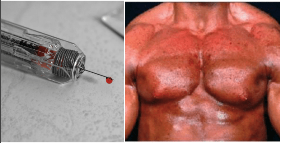 Sustanon Side Effects: Top 7 Worst Results From Sust 250