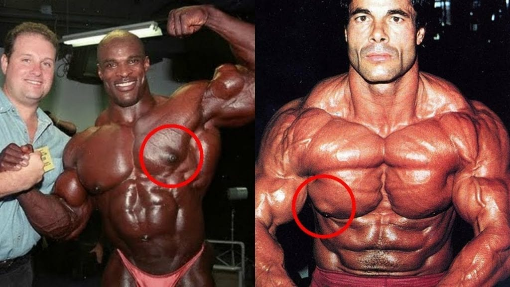 steroids gynecomastia