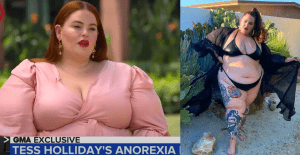 tess holliday anorexia